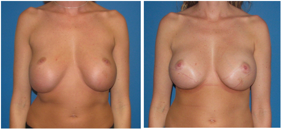 bottoming correction before & after photo