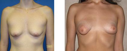 tuberous breast photo 1