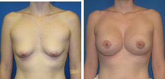 tuberous breast photo 2