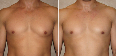 Gynecomastia and the Asymmetric Chest