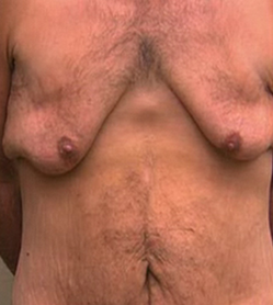 Gynecomastia in the Massive Weight Loss Male