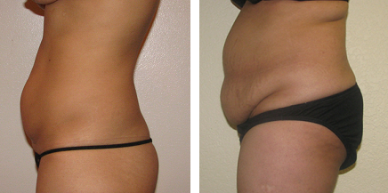 Best Candidates for a Mini-Tummy Tuck