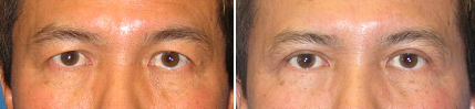 Upper Eyelid Surgery before and after photo