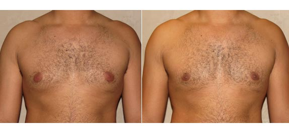 gynecomastia surgery revision before and after photo 1