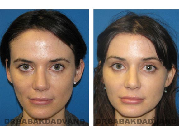 Before - After Photos |Browlift| 28 year old female, - front view