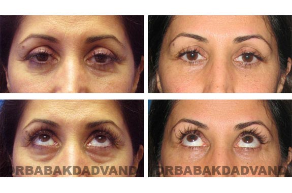 Before - After Photos |Eyelid| 47 year old female, - front view