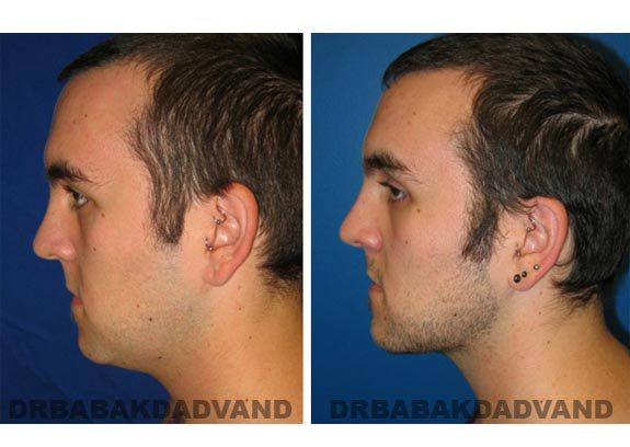 Before - After Photos |Necklift| 26 year old male, - left side view