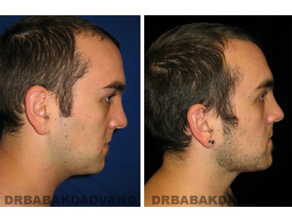 Before - After Photos |Necklift| 26 year old male, - right side view
