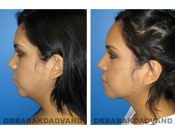 Before - After Photos |Necklift| 20 year old female, - left side view