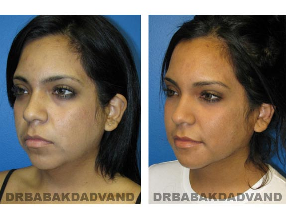 Before - After Photos |Necklift| 20 year old female, - left side,oblique view