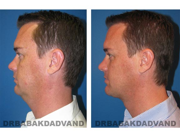 Before - After Photos |Necklift| 37 year old male, - left side view