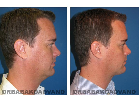 Before - After Photos |Necklift| 37 year old male, - right side view