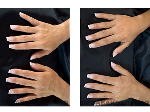 Before and After Photos |Radiesse| female (hands)