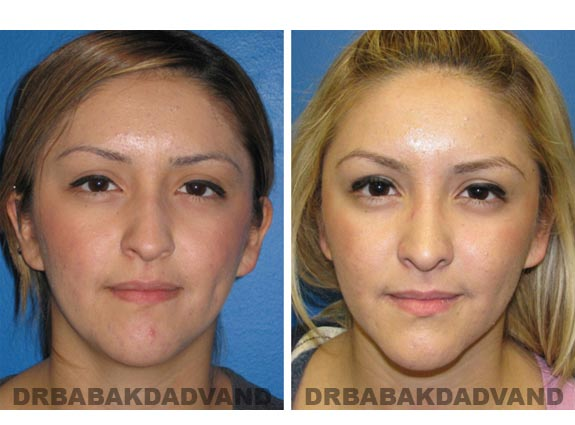 Before - After Photos |Rhinoplasty| 20 year old female, - front view
