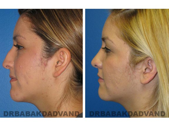 Before - After Photos |Rhinoplasty| 20 year old female, - left side view