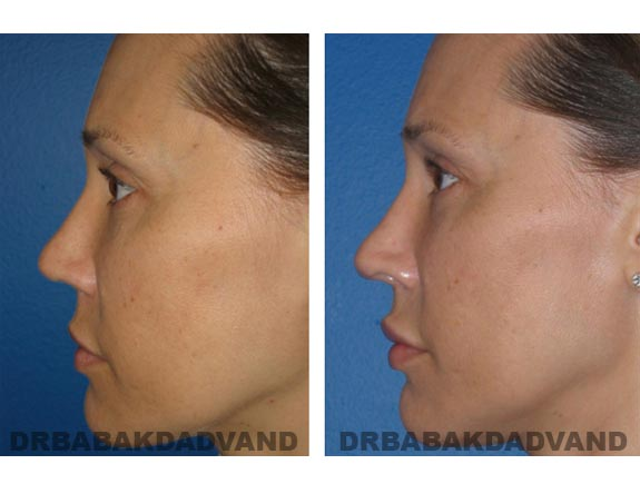 Before - After Photos |Rhinoplasty| 42 year old female, - right side view
