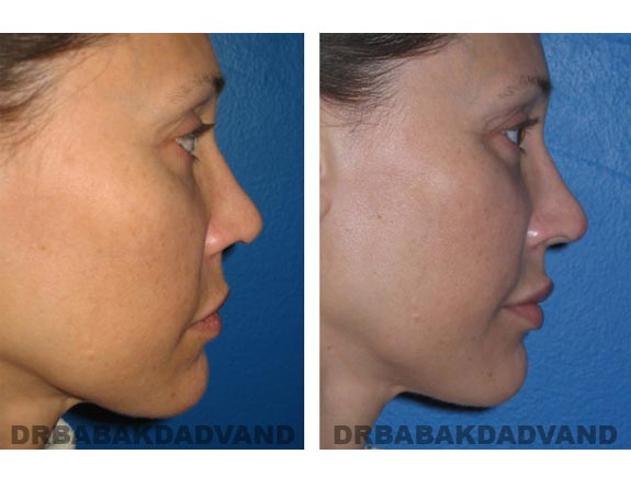 Before - After Photos |Rhinoplasty| 42 year old female, - left side view