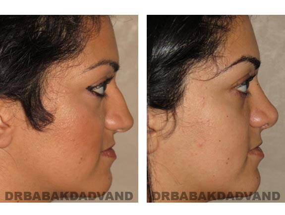 Before - After Photos |Rhinoplasty| 22 year old female, - right side view