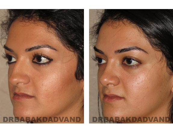 Before - After Photos |Rhinoplasty| 22 year old female, - left side,oblique view