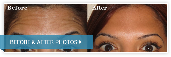 Fillers/Botox. Before and After Procedure. photos female front view