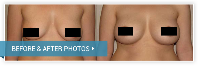 Breast lift (Mastopexy). Before and After photos. Woman - front view