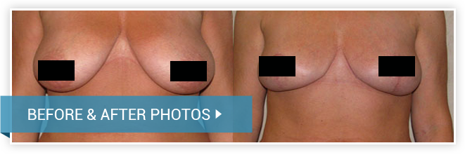 Breast Reduction. Before and After photos. Female - front view