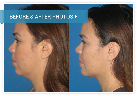 Chin Augmentation. Before and After photos female left side view