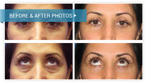 Eyelid Surgery (Blepharoplasty). Before and After photos female front view