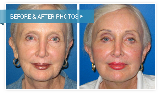 Facelift. Before and After photos female front view
