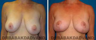 Breast Lift. Before and After Photos. 42 year old woman - front view
