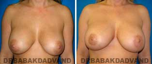 Breast Lift. Before and After Photos. 42 year old female - front view