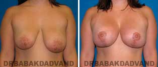 Breast Lift. Before and After Photos. 28 year old woman - front view