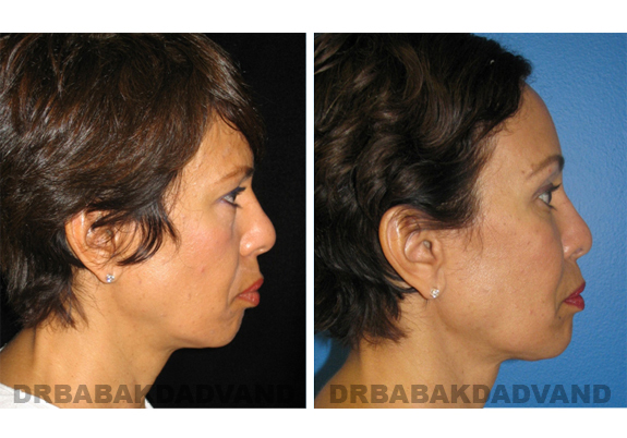 Before - After Photos |Chin Augmentation| female, right side view