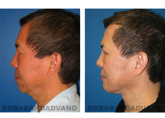 Before - After Photos |Chin Augmentation| man, left side view