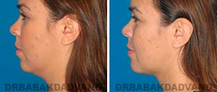 Face Before & After Photos. Chin Augmentation