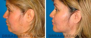 Chin Augmentation: Before and After Photos - female, left side view