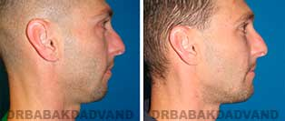 Chin Augmentation: Before and After Photos - man, right side view