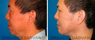 Chin Augmentation: Before and After Photos - man, left side view