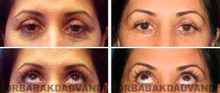 Face Before & After Photos. Eyelid (Blepharoplasty)
