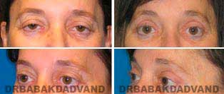 Eyelid: Before and After Photos - 56 year old female, front view (oblique view)
