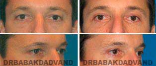 Eyelid: Before and After Photos - 36 year old male, front view (oblique view)