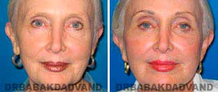 Face Before & After Photos. Facelift