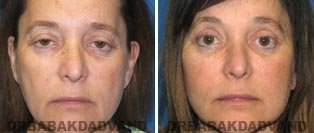 Facelift: Before and After Photos - 67 year old female