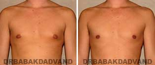 Gynecomastia. Before and After Photos. 31 year old male - front view