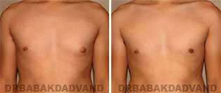 Gynecomastia. Before & After Photos. 24 year old male - front view