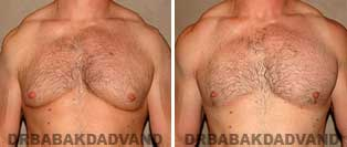 Gynecomastia. Before and After Photos. 39 year old man - front view