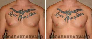 Gynecomastia. Before and After Photos. 24 year old male - front view