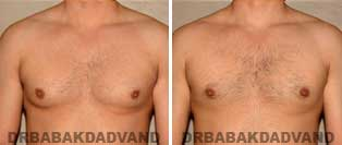 Gynecomastia. Before and After Photos. 32 year old male - front view