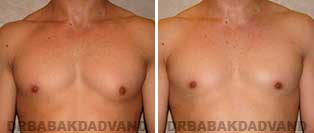 Gynecomastia. Before and After Photos. 26 year old male - front view