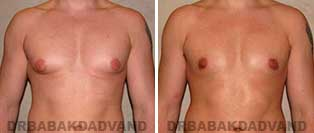 Gynecomastia. Before & After Photos. 24 year old man - front view